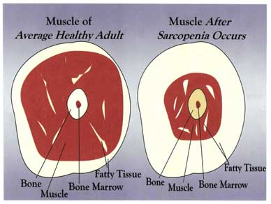 Use it or Lose it: Muscles and Aging